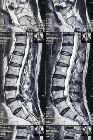 MRI画像 坐骨神経痛
